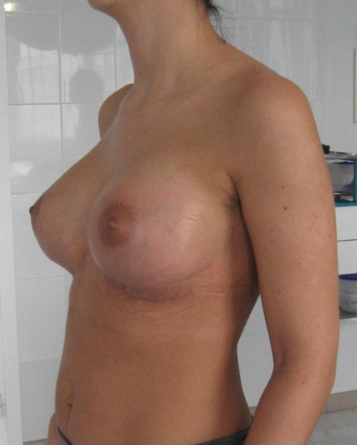 Вы просматриваете изображения у материала: Пластическая хирургия доктора Лобанова